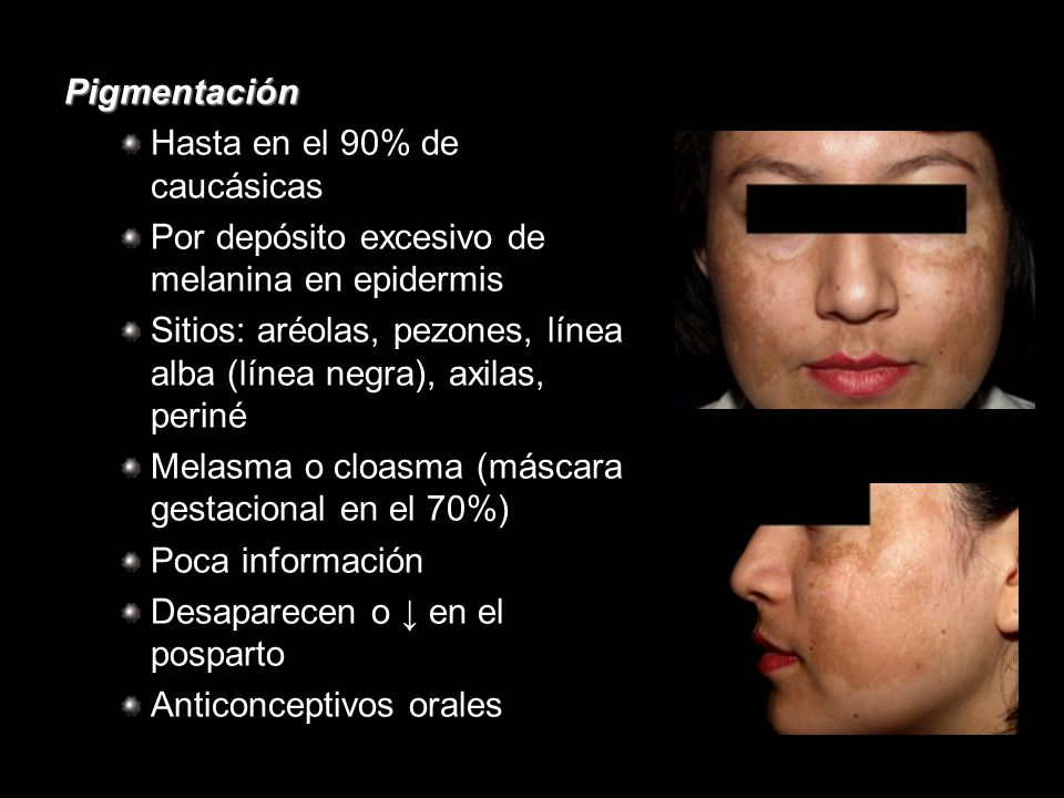 Pigmentación Hasta en el 90% de caucásicas. Por depósito excesivo de melanina en epidermis.