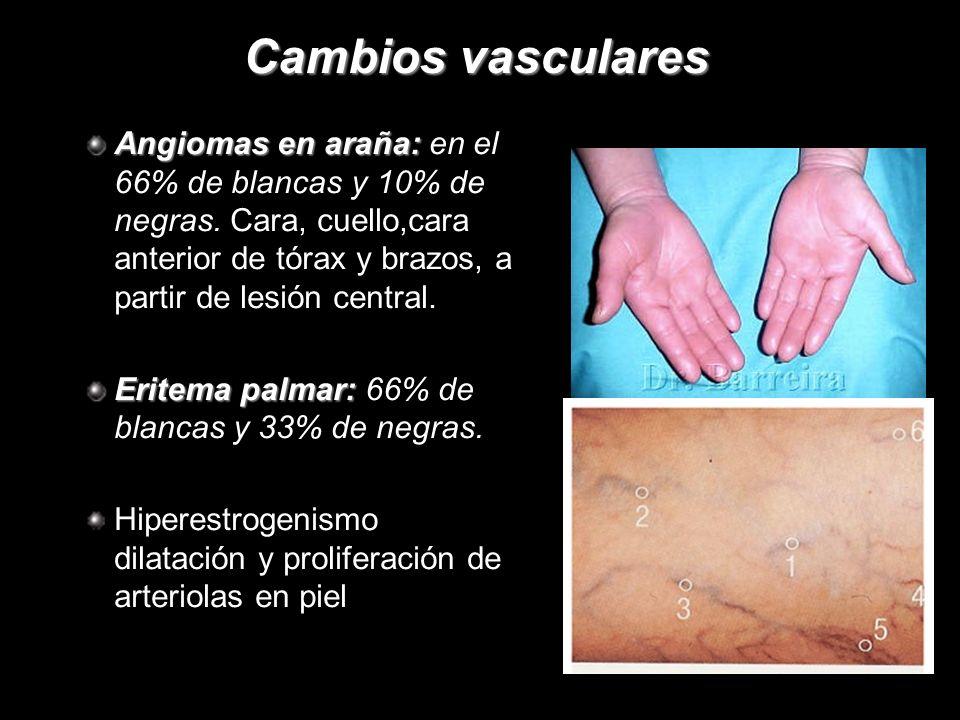 Cambios vasculares Angiomas en araña: en el 66% de blancas y 10% de negras. Cara, cuello,cara anterior de tórax y brazos, a partir de lesión central.
