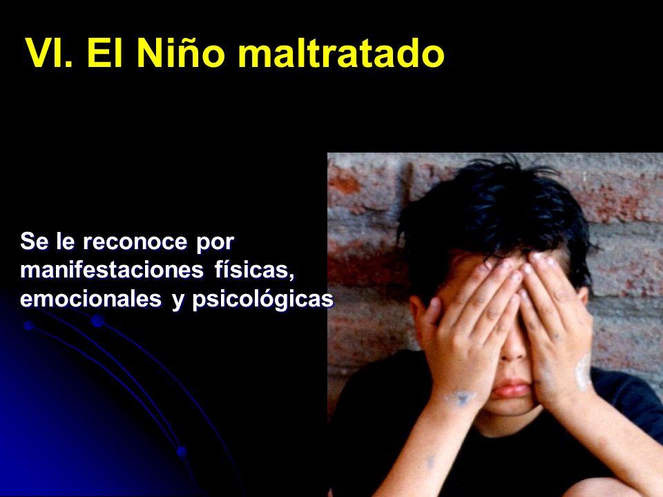 VI. El Niño maltratado Se le reconoce por manifestaciones físicas, emocionales y psicológicas