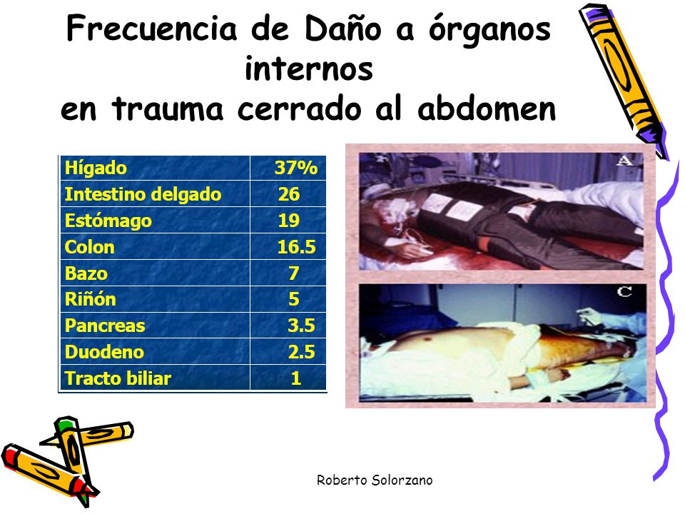 Frecuencia de Daño a órganos internos en trauma cerrado al abdomen