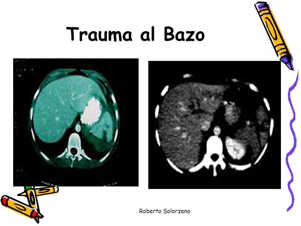 Trauma al Bazo Roberto Solorzano