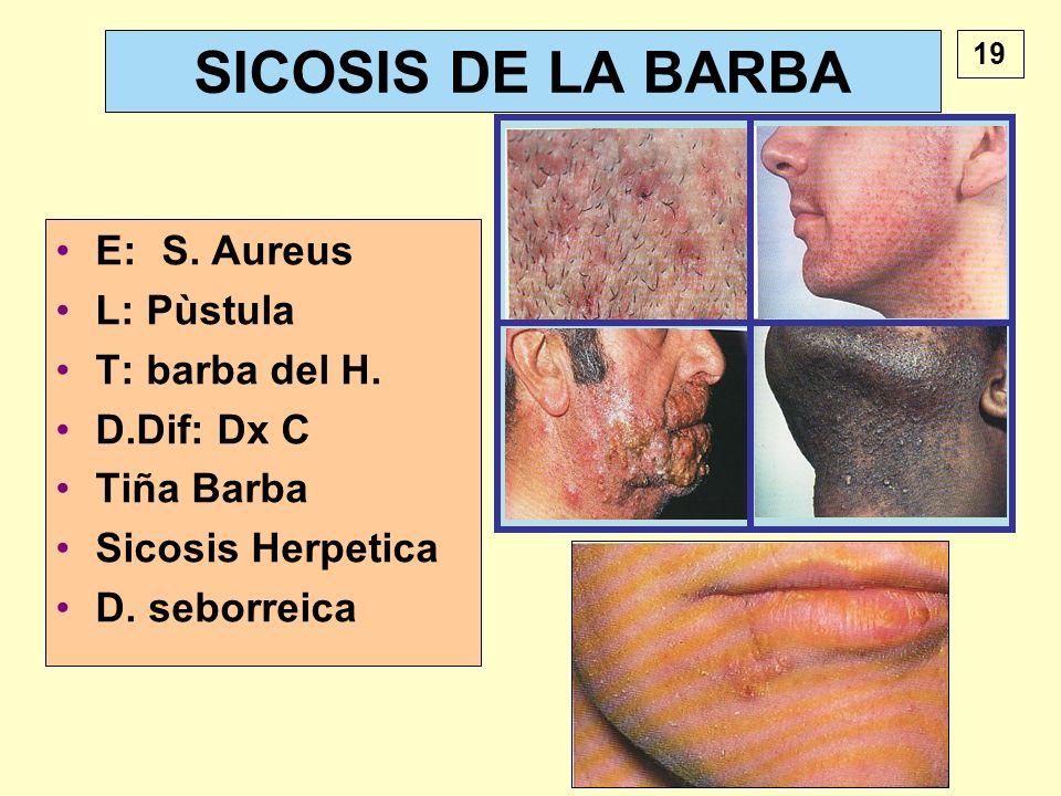 SICOSIS DE LA BARBA E: S. Aureus L: Pùstula T: barba del H.
