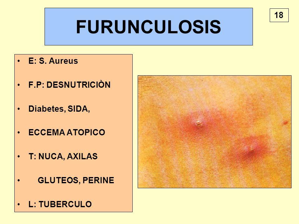 FURUNCULOSIS 18 E: S. Aureus F.P: DESNUTRICIÒN Diabetes, SIDA,