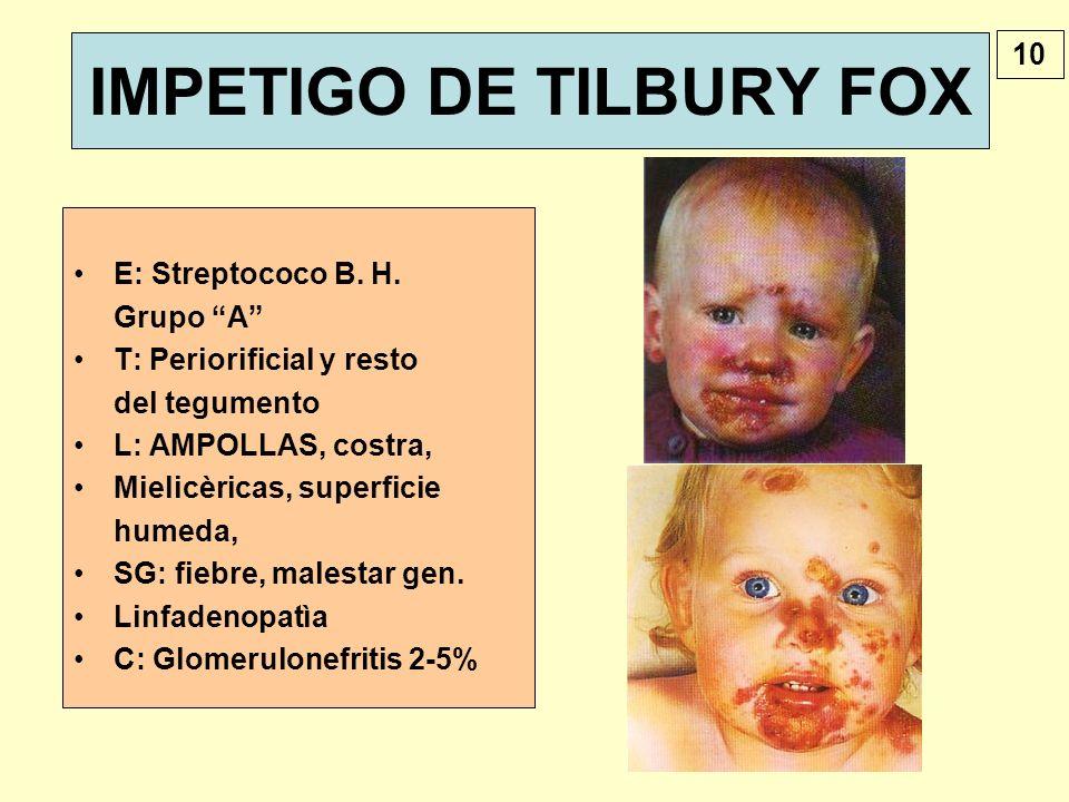 IMPETIGO DE TILBURY FOX