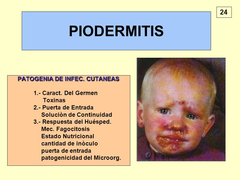 PATOGENIA DE INFEC. CUTANEAS