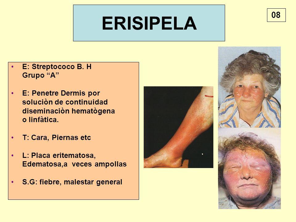 ERISIPELA 08 E: Streptococo B. H Grupo A E: Penetre Dermis por
