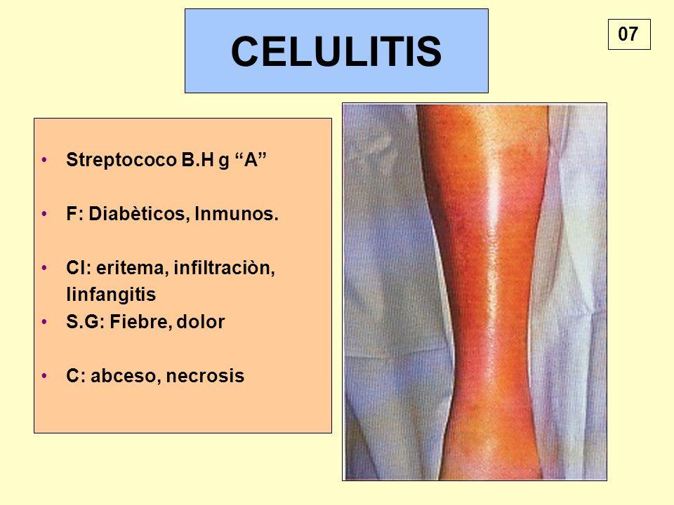 CELULITIS 07 Streptococo B.H g A F: Diabèticos, Inmunos.