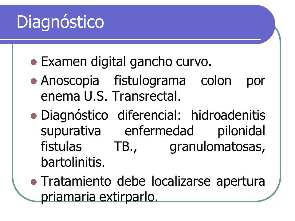 Diagnóstico Examen digital gancho curvo.