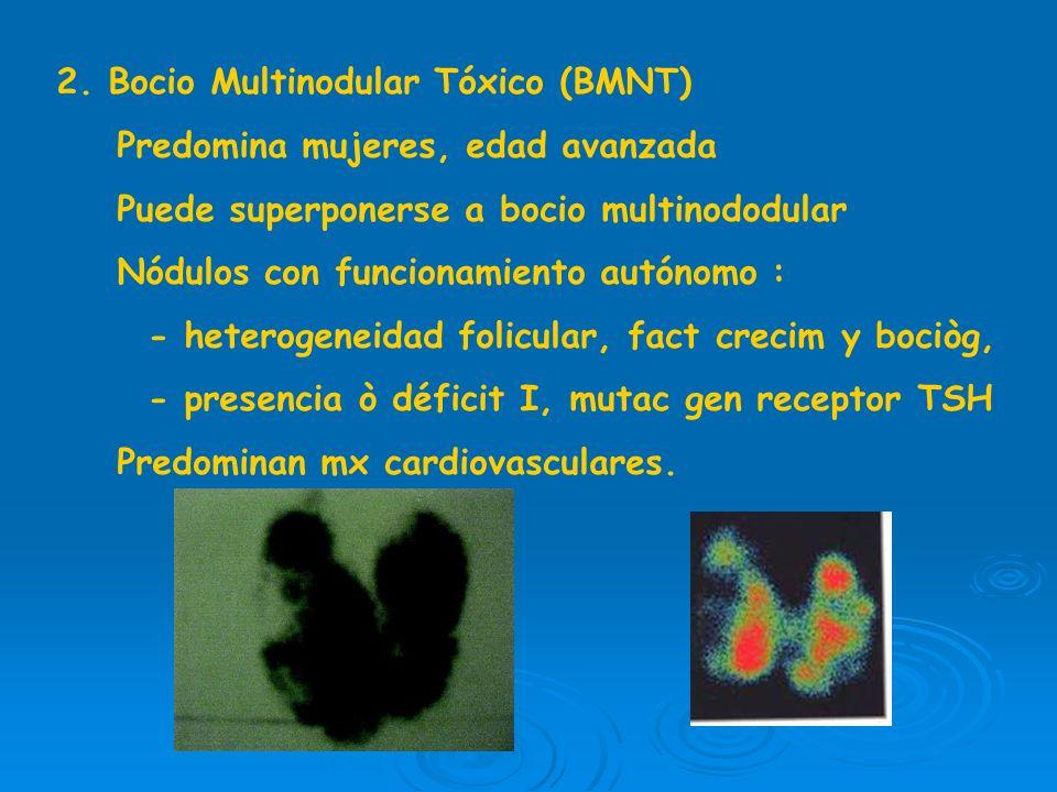 2. Bocio Multinodular Tóxico (BMNT)