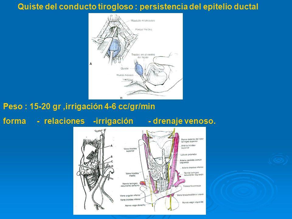 Quiste del conducto tirogloso : persistencia del epitelio ductal