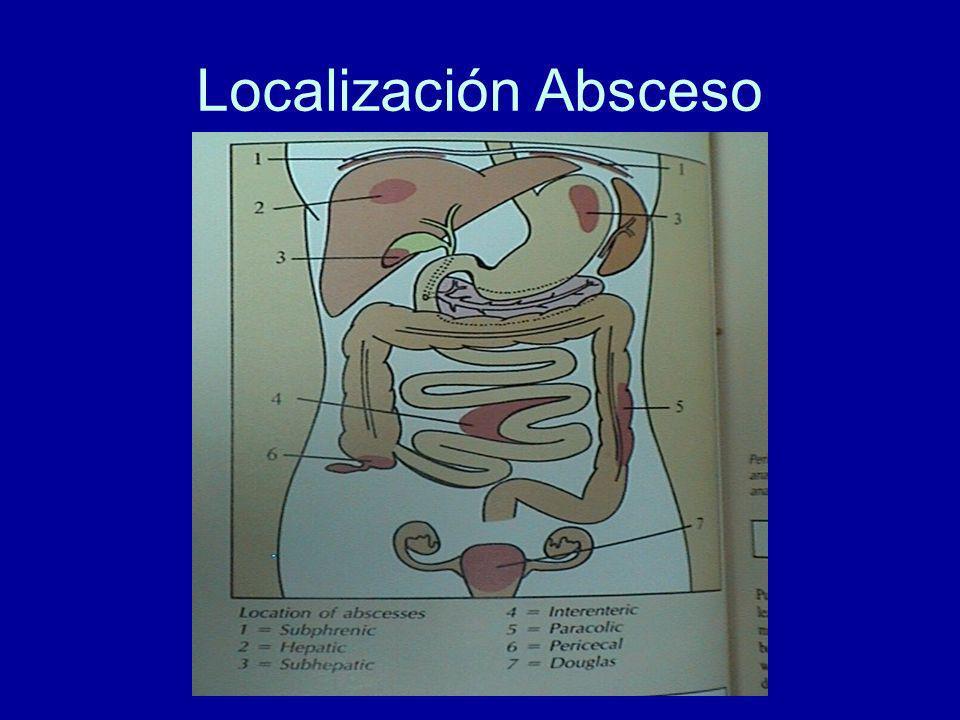 Localización Absceso
