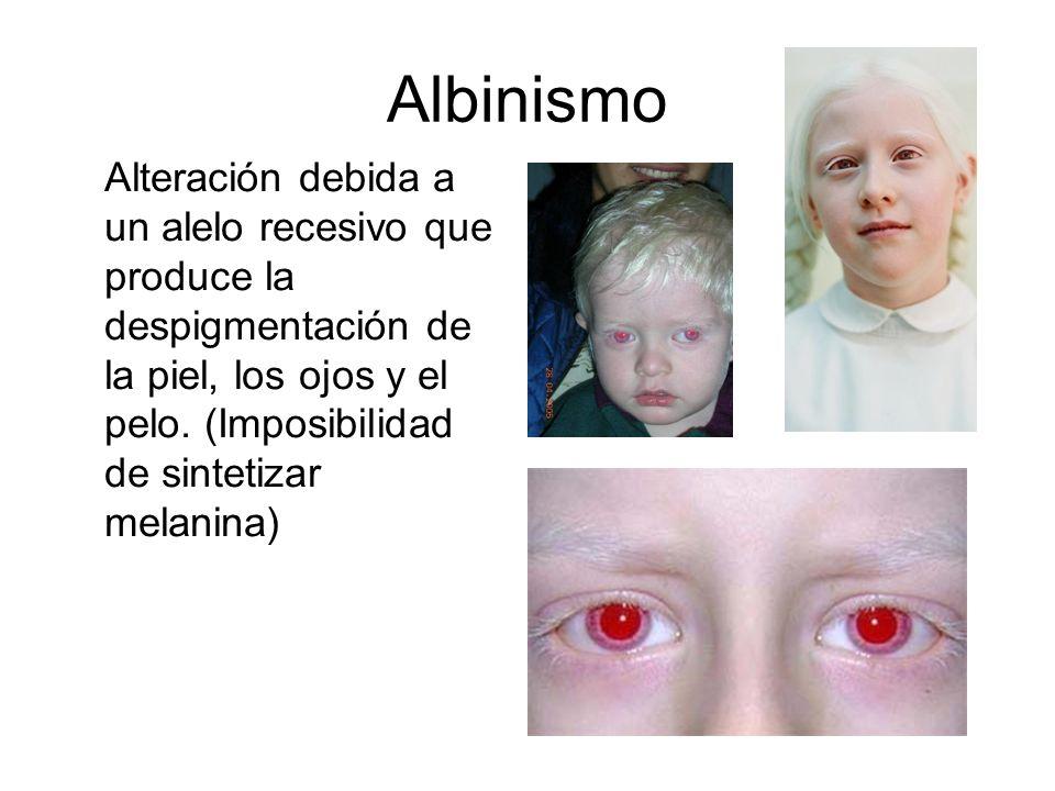 AlbinismoAlteración debida a un alelo recesivo que produce la despigmentación de la piel, los ojos y el pelo.