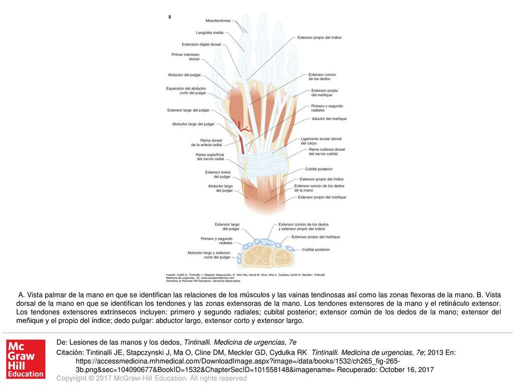 Perfecto Pulgar Anatomía Del Tendón Extensor Festooning - Anatomía ...