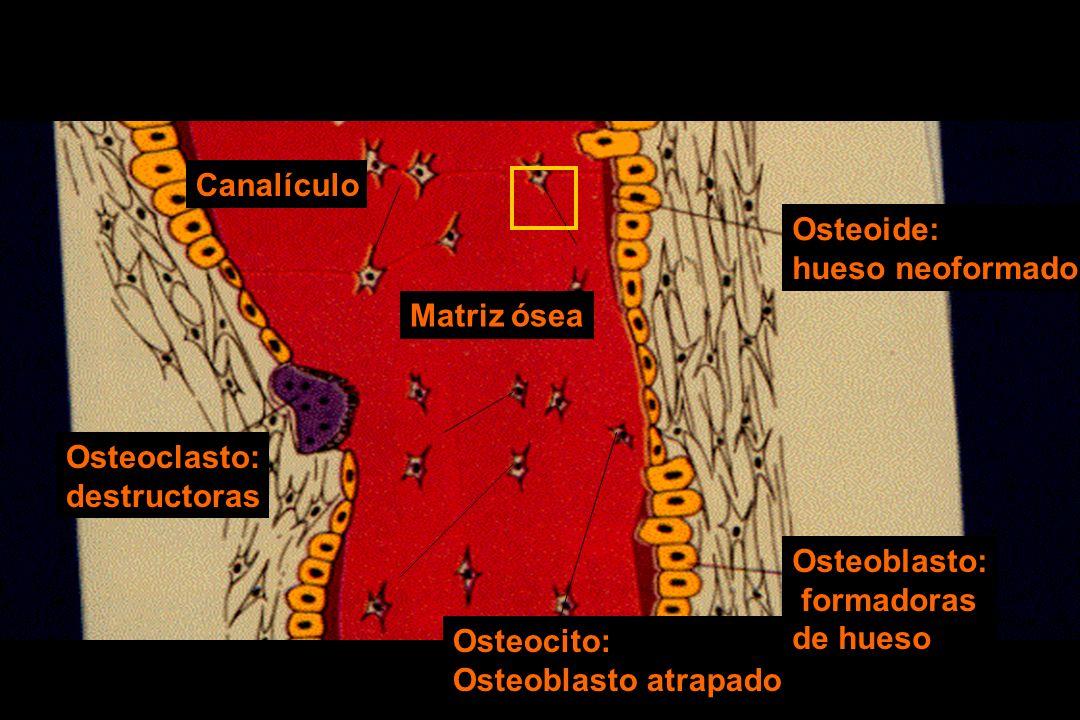 Osteoide: hueso neoformado. Osteocito: Osteoblasto atrapado. Osteoblasto: formadoras. de hueso.