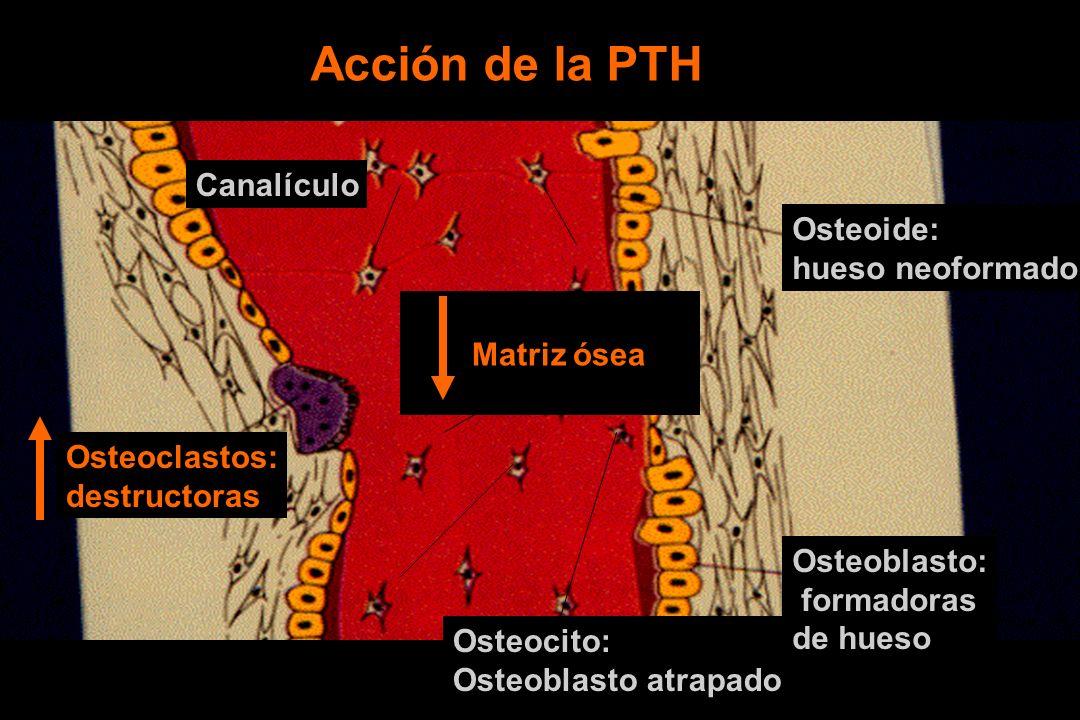 Acción de la PTH Canalículo Osteoide: hueso neoformado Matriz ósea