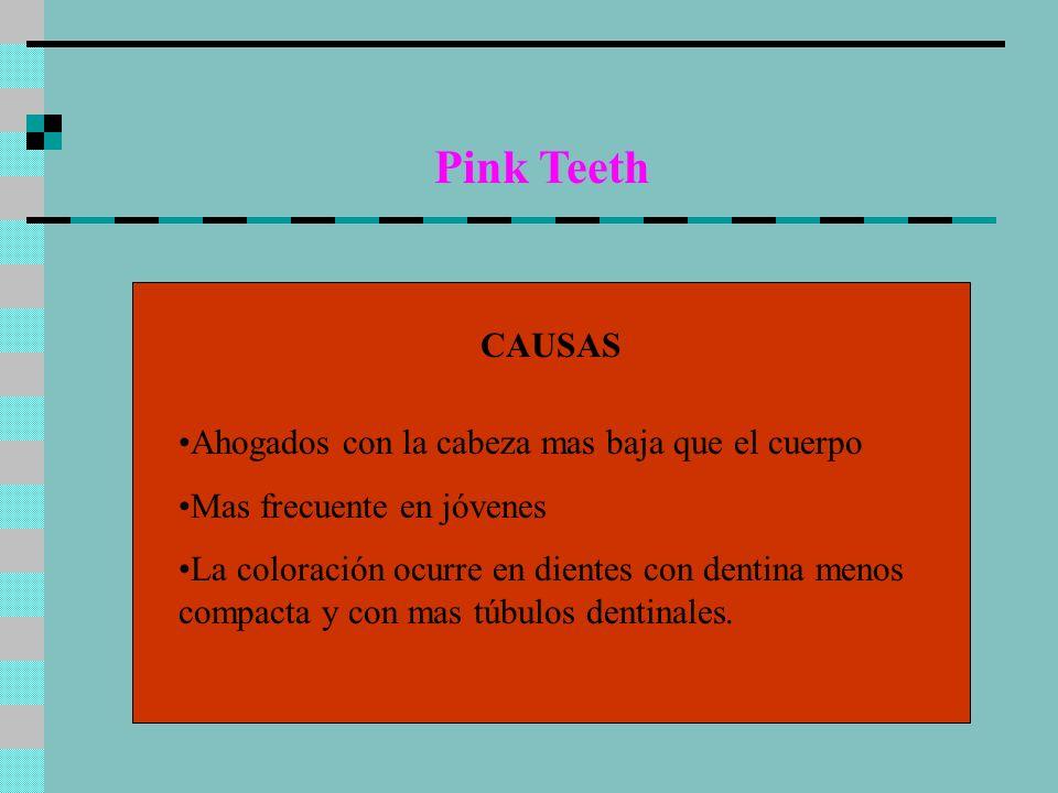Pink Teeth CAUSAS Ahogados con la cabeza mas baja que el cuerpo