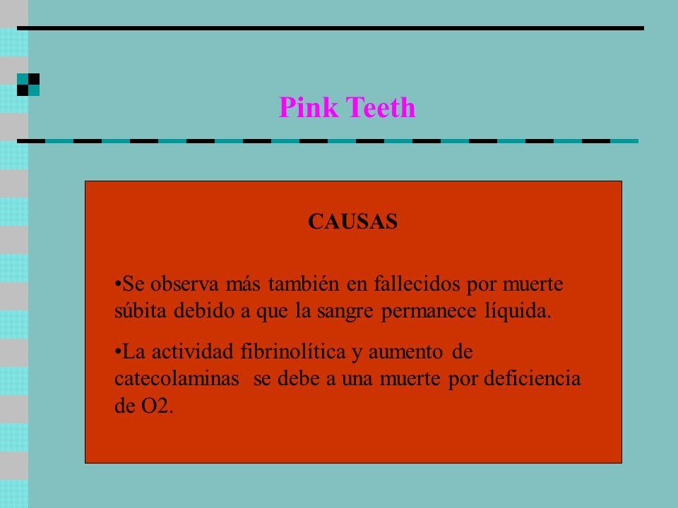 Pink TeethCAUSAS. Se observa más también en fallecidos por muerte súbita debido a que la sangre permanece líquida.
