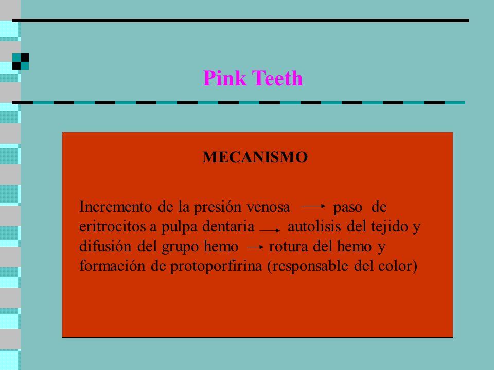 Pink Teeth MECANISMO.