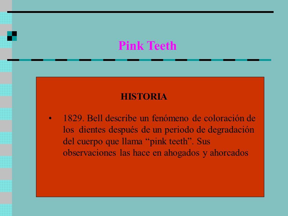 Pink TeethHISTORIA.