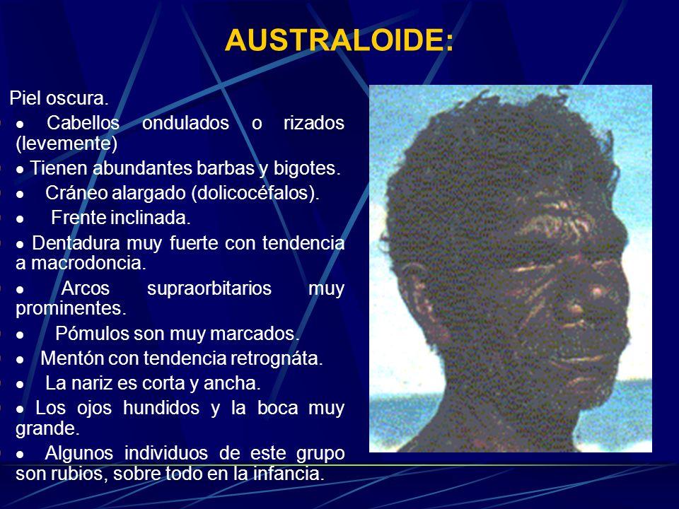 AUSTRALOIDE: · Piel oscura. · Cabellos ondulados o rizados (levemente)