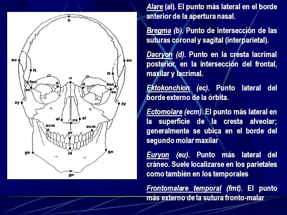 Alare (al). El punto más lateral en el borde anterior de la apertura nasal.