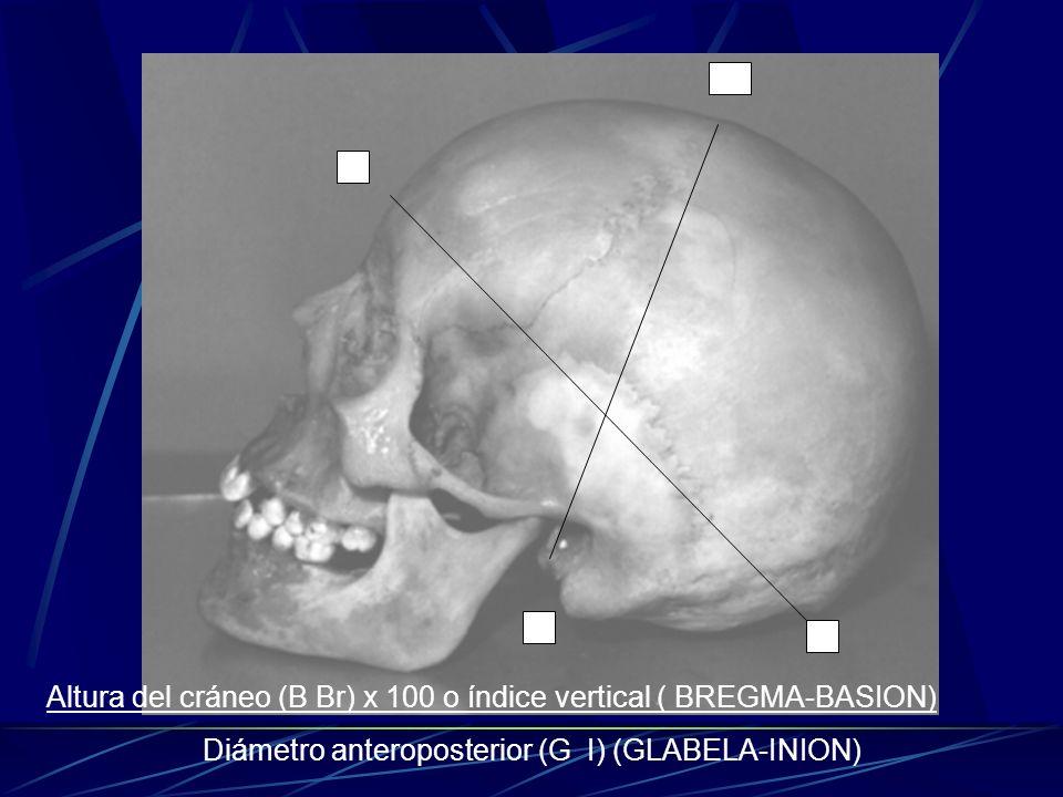 Diámetro anteroposterior (G I) (GLABELA-INION)