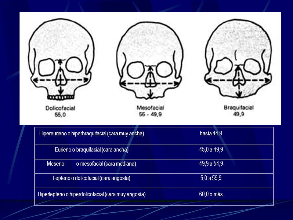 Hipereurieno o hiperbraquifacial (cara muy ancha) hasta 44,9