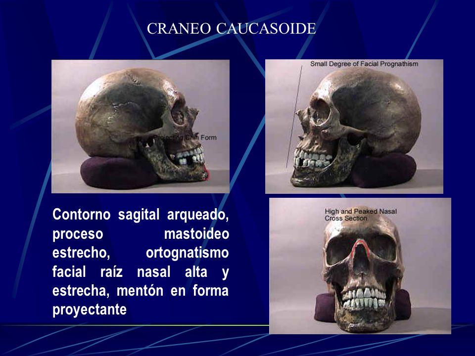 CRANEO CAUCASOIDE Contorno sagital arqueado, proceso mastoideo estrecho, ortognatismo facial raíz nasal alta y estrecha, mentón en forma proyectante.