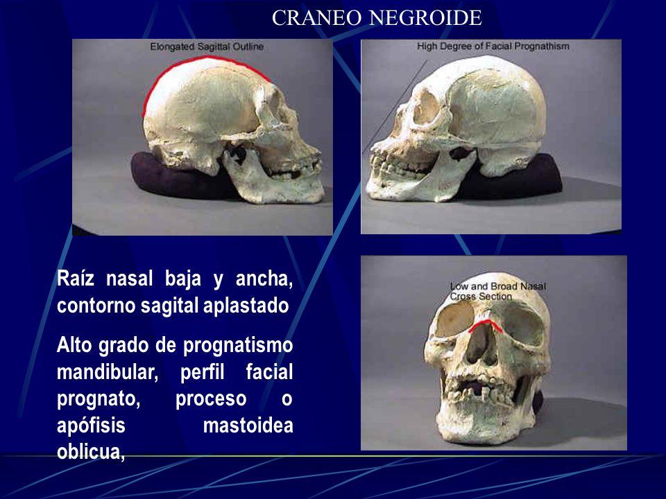 CRANEO NEGROIDE Raíz nasal baja y ancha, contorno sagital aplastado.