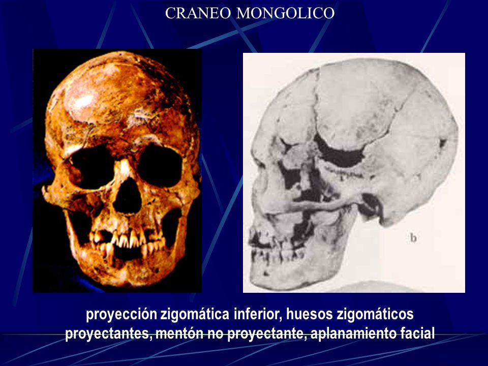 CRANEO MONGOLICO proyección zigomática inferior, huesos zigomáticos proyectantes, mentón no proyectante, aplanamiento facial.