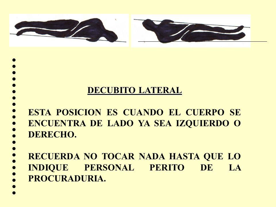 DECUBITO LATERALESTA POSICION ES CUANDO EL CUERPO SE ENCUENTRA DE LADO YA SEA IZQUIERDO O DERECHO.