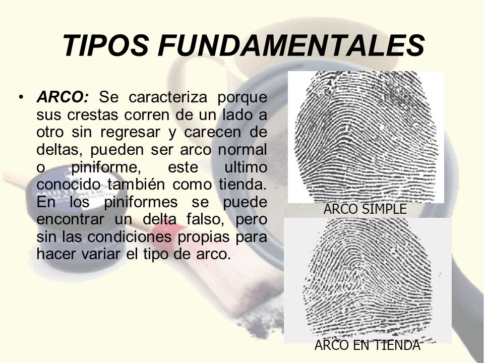 TIPOS FUNDAMENTALES ARCO SIMPLE.