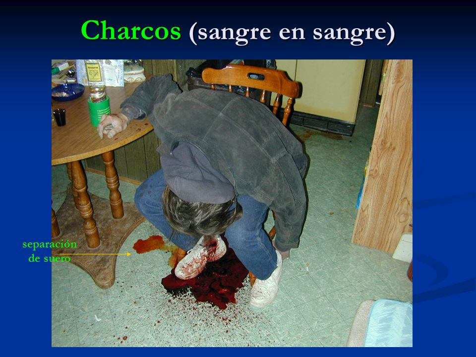 Charcos (sangre en sangre)
