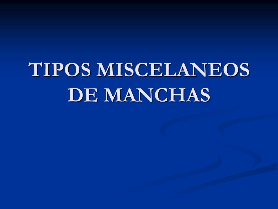 TIPOS MISCELANEOS DE MANCHAS