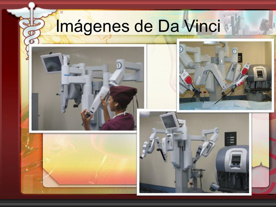 Imágenes de Da Vinci