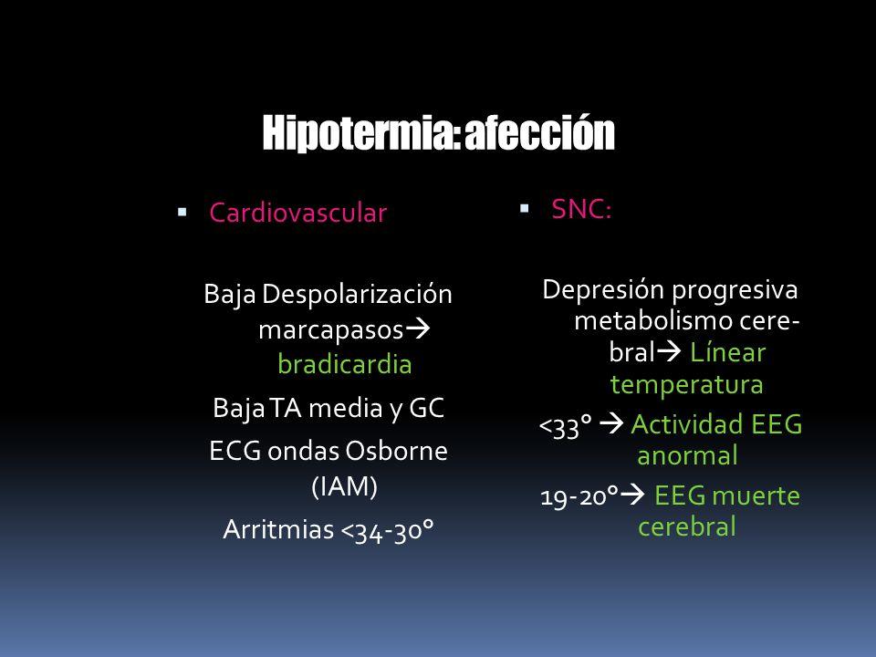 Hipotermia: afección Cardiovascular