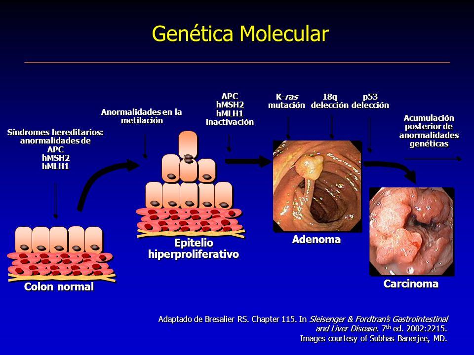 Genética Molecular Adenoma Epitelio hiperproliferativo Carcinoma