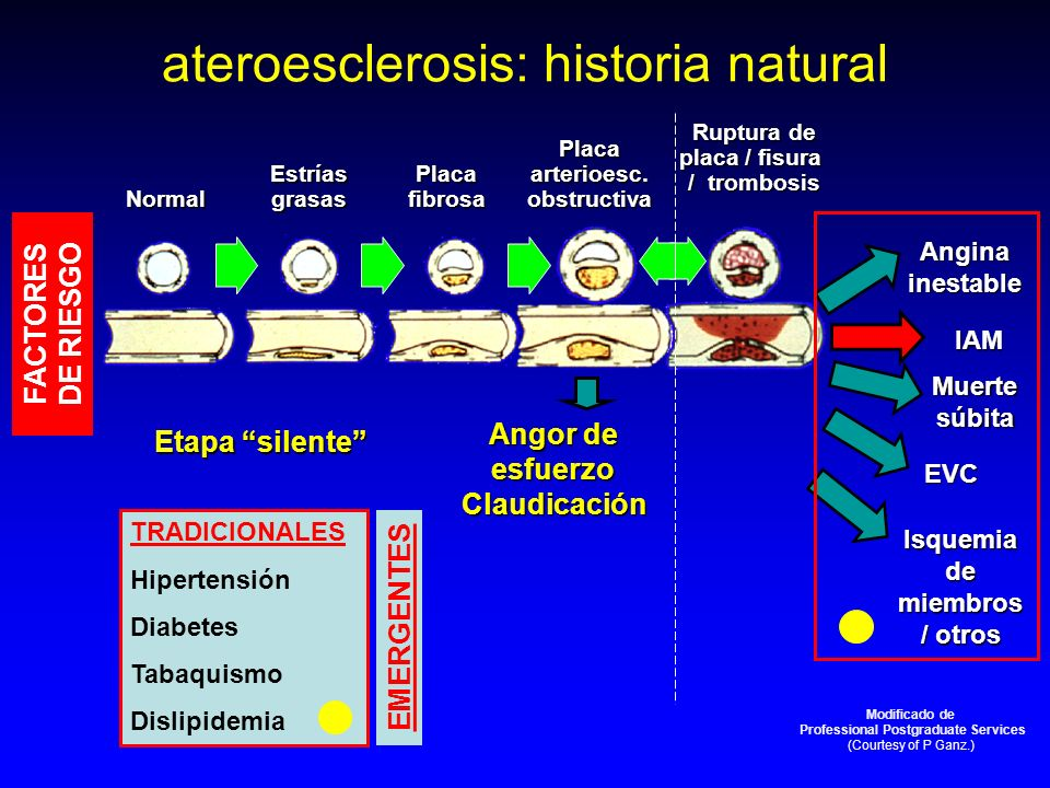 ateroesclerosis: historia natural