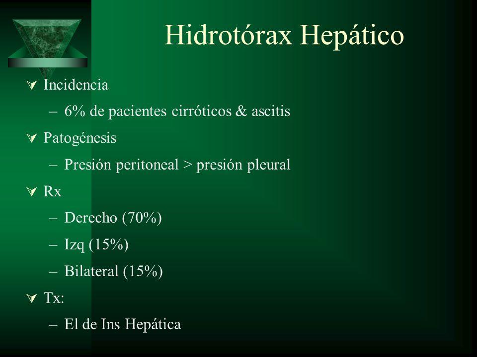 Hidrotórax Hepático Incidencia 6% de pacientes cirróticos & ascitis