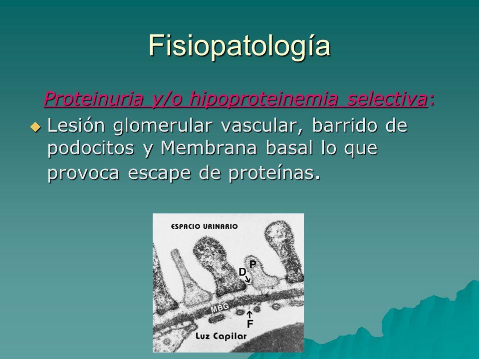 Proteinuria y/o hipoproteinemia selectiva: