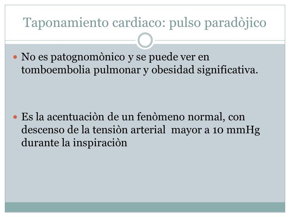 Taponamiento cardiaco: pulso paradòjico