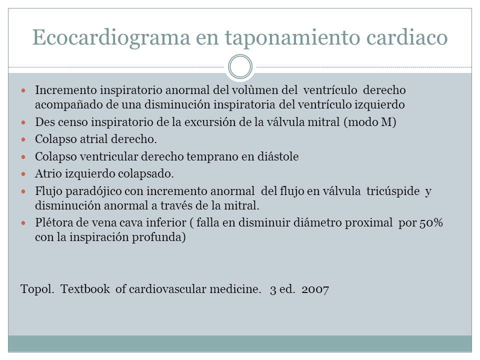 Ecocardiograma en taponamiento cardiaco