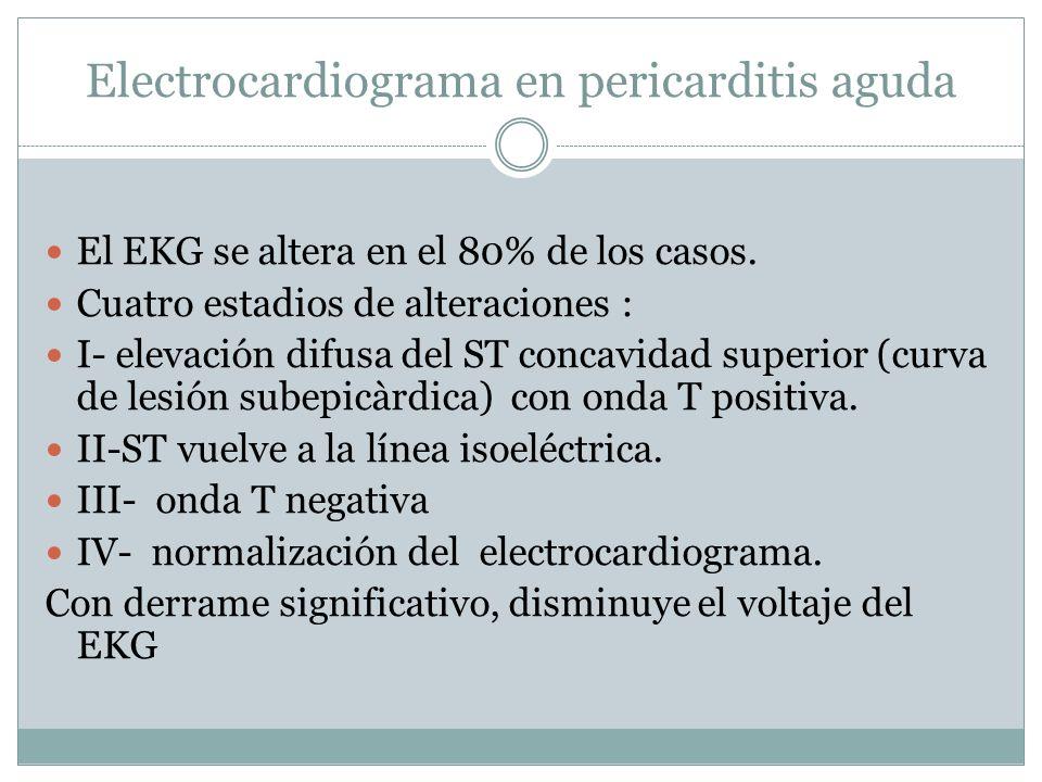 Electrocardiograma en pericarditis aguda