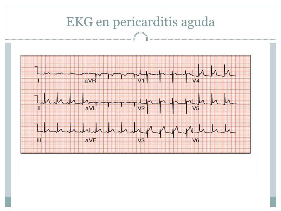 EKG en pericarditis aguda