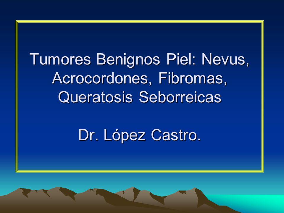Tumores Benignos Piel: Nevus, Acrocordones, Fibromas, Queratosis Seborreicas Dr. López Castro.