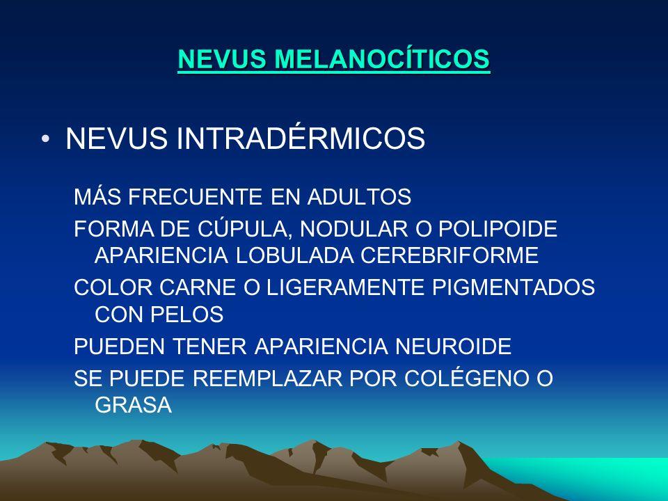 NEVUS INTRADÉRMICOS NEVUS MELANOCÍTICOS MÁS FRECUENTE EN ADULTOS