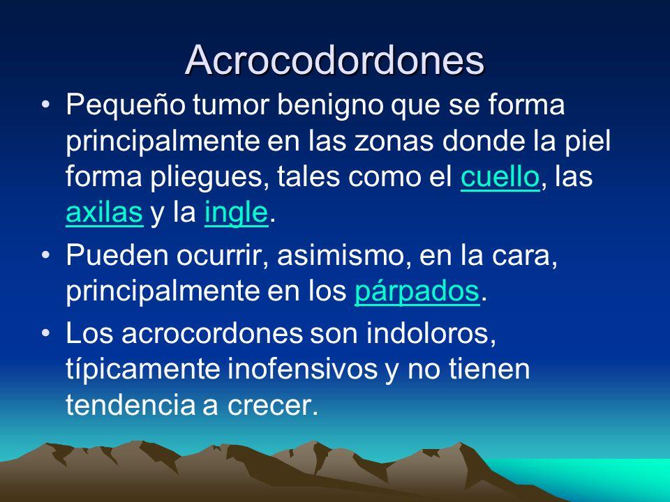 Acrocodordones