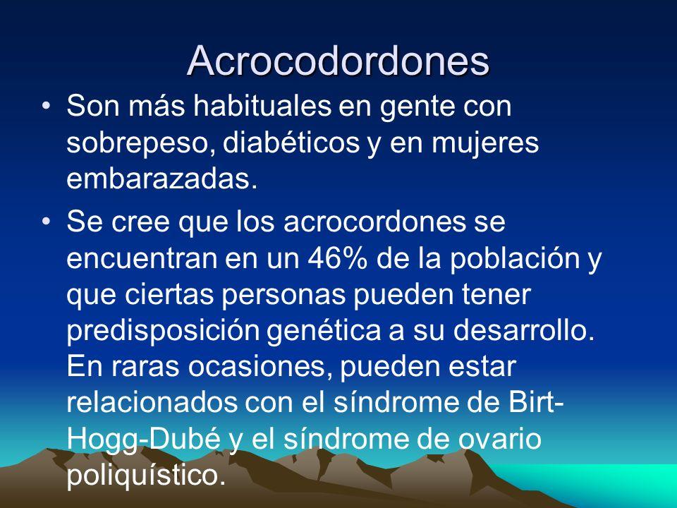 Acrocodordones Son más habituales en gente con sobrepeso, diabéticos y en mujeres embarazadas.