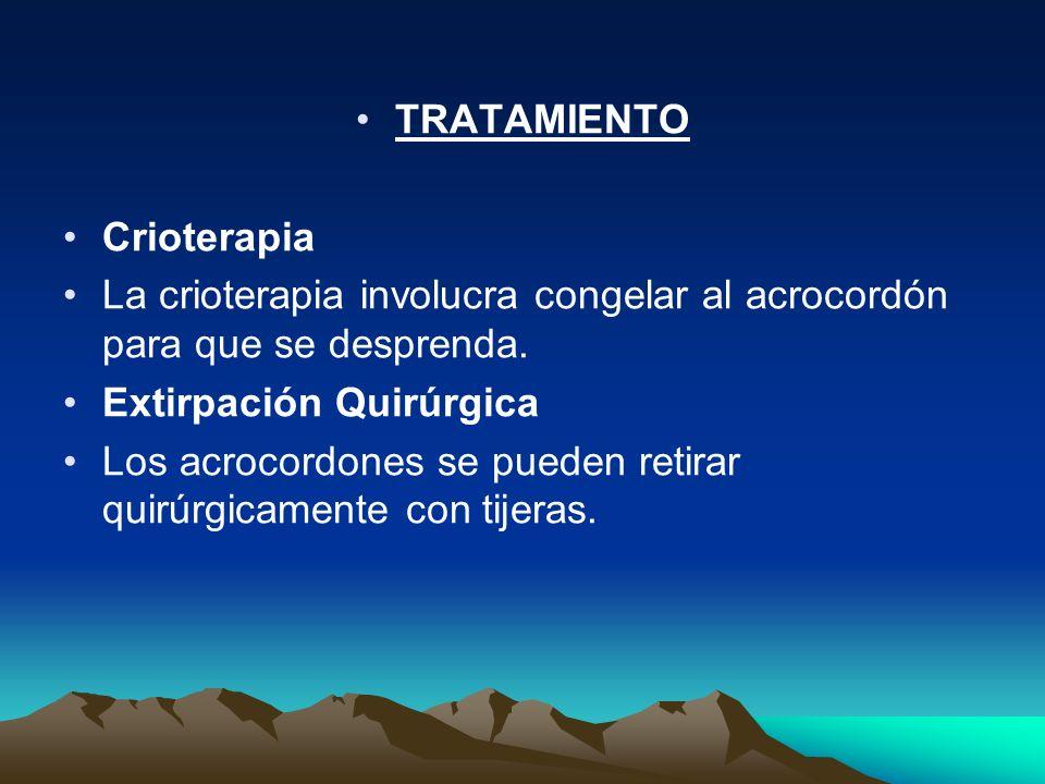 TRATAMIENTO Crioterapia. La crioterapia involucra congelar al acrocordón para que se desprenda. Extirpación Quirúrgica.