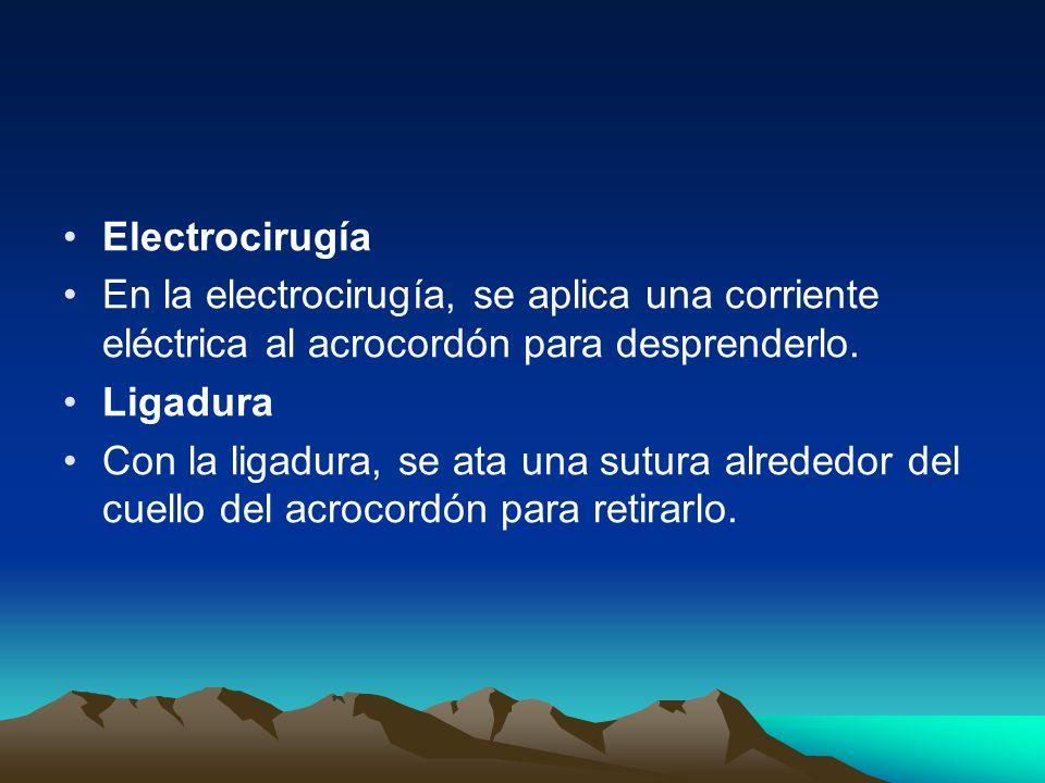 Electrocirugía En la electrocirugía, se aplica una corriente eléctrica al acrocordón para desprenderlo.